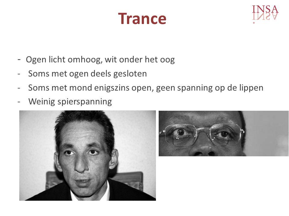 Trance - Ogen licht omhoog, wit onder het oog -Soms met ogen deels gesloten -Soms met mond enigszins open, geen spanning op de lippen -Weinig spierspanning