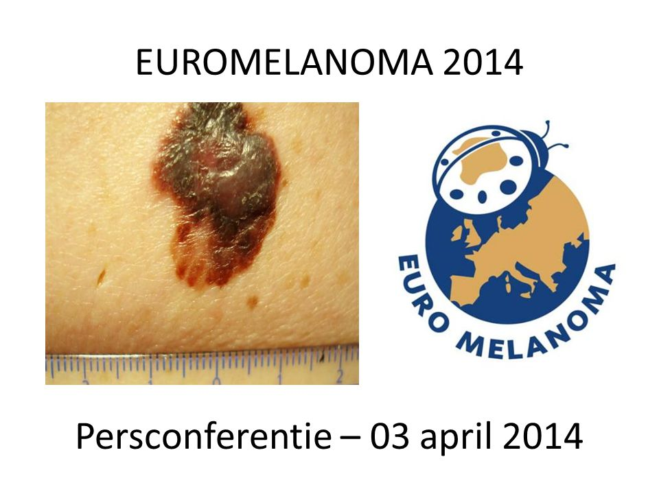 EUROMELANOMA 2014 Persconferentie – 03 april 2014