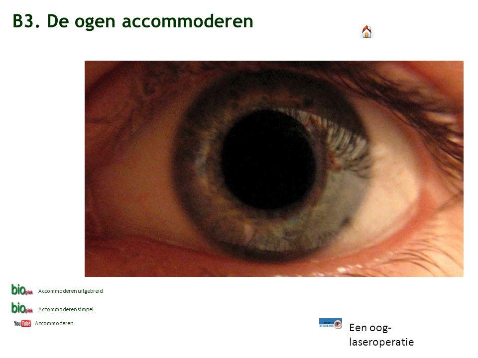B3. De ogen accommoderen Accommoderen Accommoderen simpel Accommoderen uitgebreid Een oog- laseroperatie