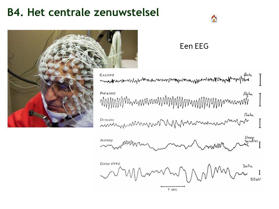 Een EEG