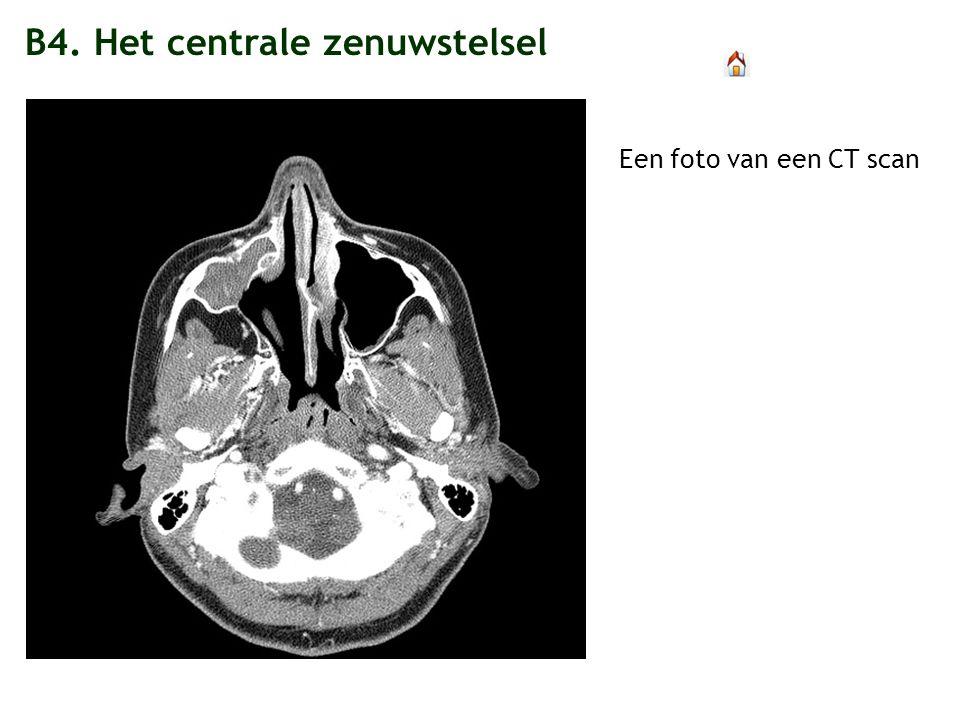 B4. Het centrale zenuwstelsel Een foto van een CT scan