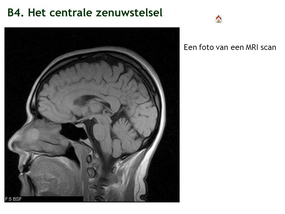 B4. Het centrale zenuwstelsel Een foto van een MRI scan