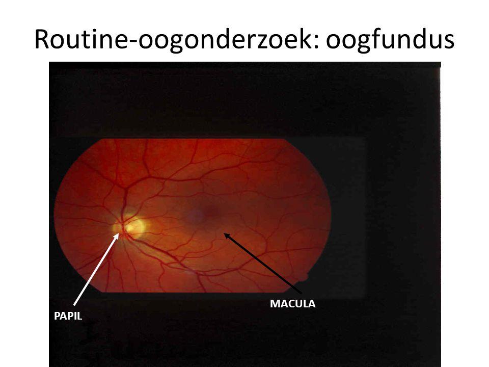 MACULA PAPIL Routine-oogonderzoek: oogfundus