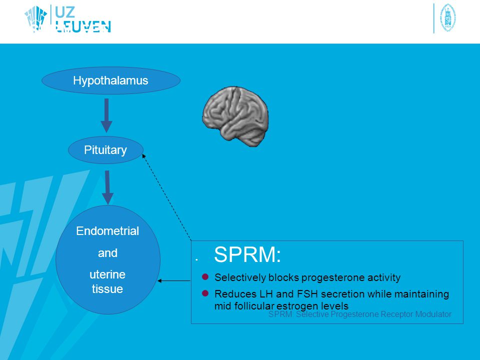 SPRM EFFECT ON THE PITUITARY • SPRM: ● Selectively blocks progesterone activity ● Reduces LH and FSH secretion while maintaining mid follicular estrog