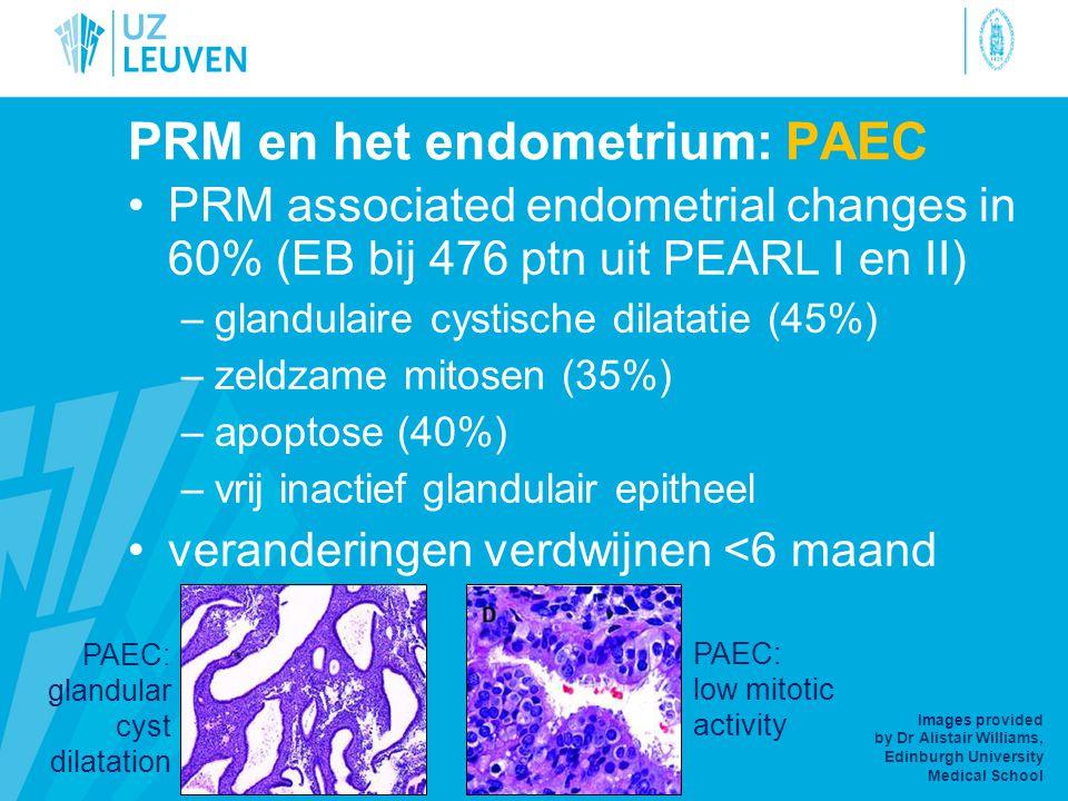 PRM en het endometrium: PAEC •PRM associated endometrial changes in 60% (EB bij 476 ptn uit PEARL I en II) –glandulaire cystische dilatatie (45%) –zel