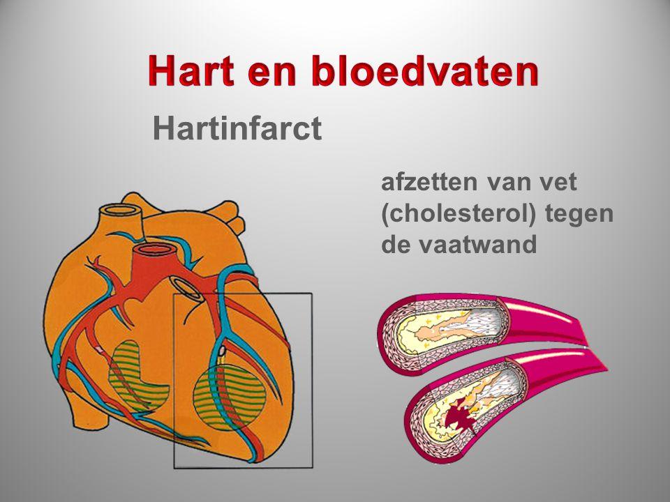 afzetten van vet (cholesterol) tegen de vaatwand Hartinfarct