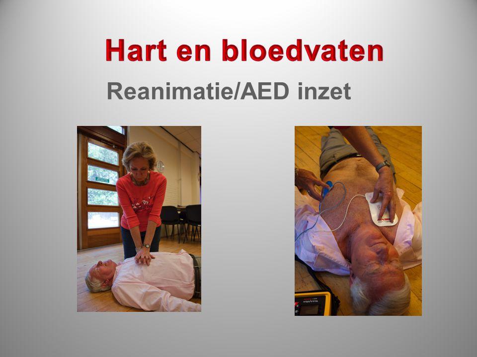 Reanimatie/AED inzet