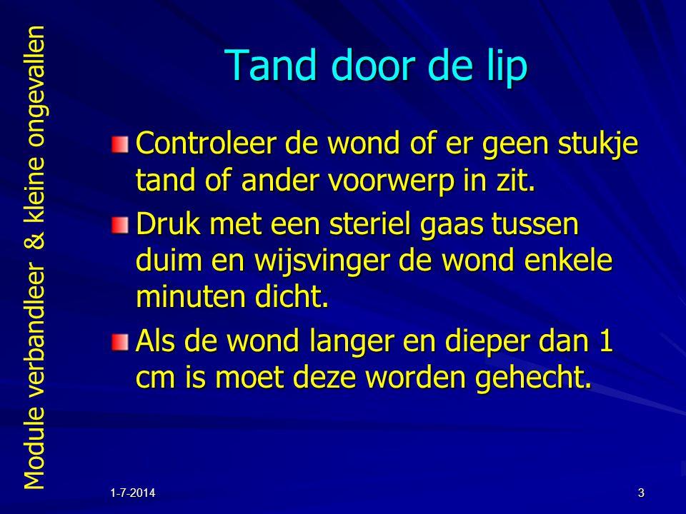 Module verbandleer & kleine ongevallen 1-7-20143 Tand door de lip Controleer de wond of er geen stukje tand of ander voorwerp in zit. Druk met een ste