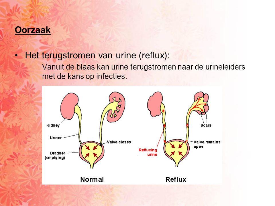 •Het terugstromen van urine (reflux): Vanuit de blaas kan urine terugstromen naar de urineleiders met de kans op infecties.