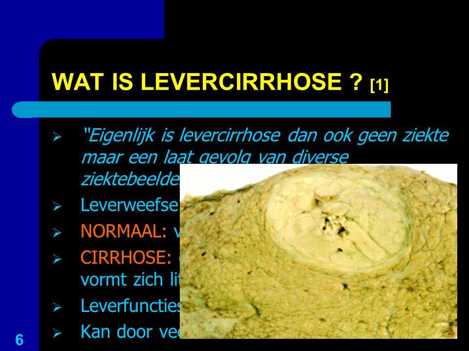 """WAT IS LEVERCIRRHOSE ? [1]  """"Eigenlijk is levercirrhose dan ook geen ziekte maar een laat gevolg van diverse ziektebeelden"""" 1  Leverweefsel sterft a"""