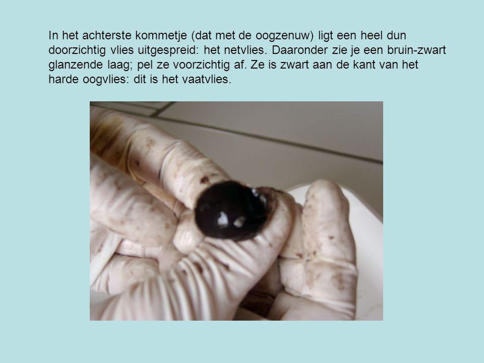 In het achterste kommetje (dat met de oogzenuw) ligt een heel dun doorzichtig vlies uitgespreid: het netvlies.