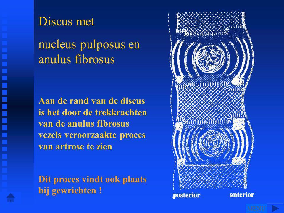 Discus met nucleus pulposus en anulus fibrosus Aan de rand van de discus is het door de trekkrachten van de anulus fibrosus vezels veroorzaakte proces van artrose te zien Dit proces vindt ook plaats bij gewrichten .
