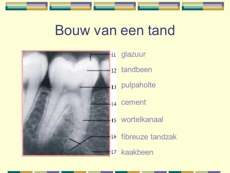 Bouw van een tand glazuur tandbeen pulpaholte cement wortelkanaal fibreuze tandzak kaakbeen