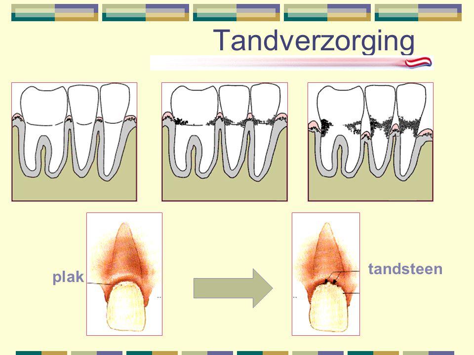 Tandverzorging plak tandsteen