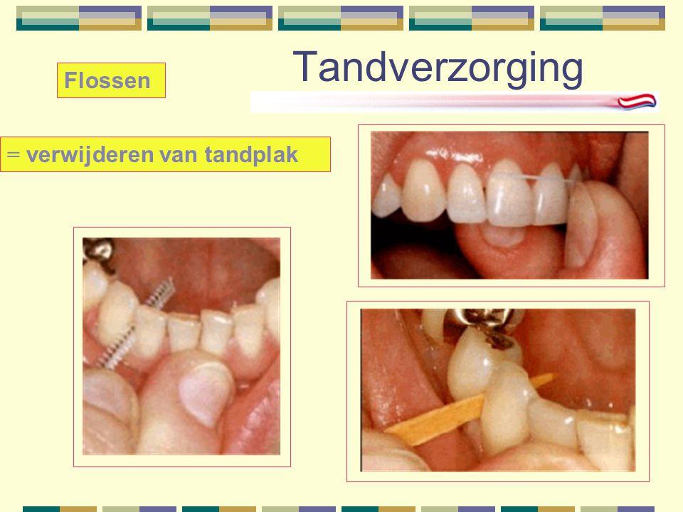 Tandverzorging = verwijderen van tandplak Flossen