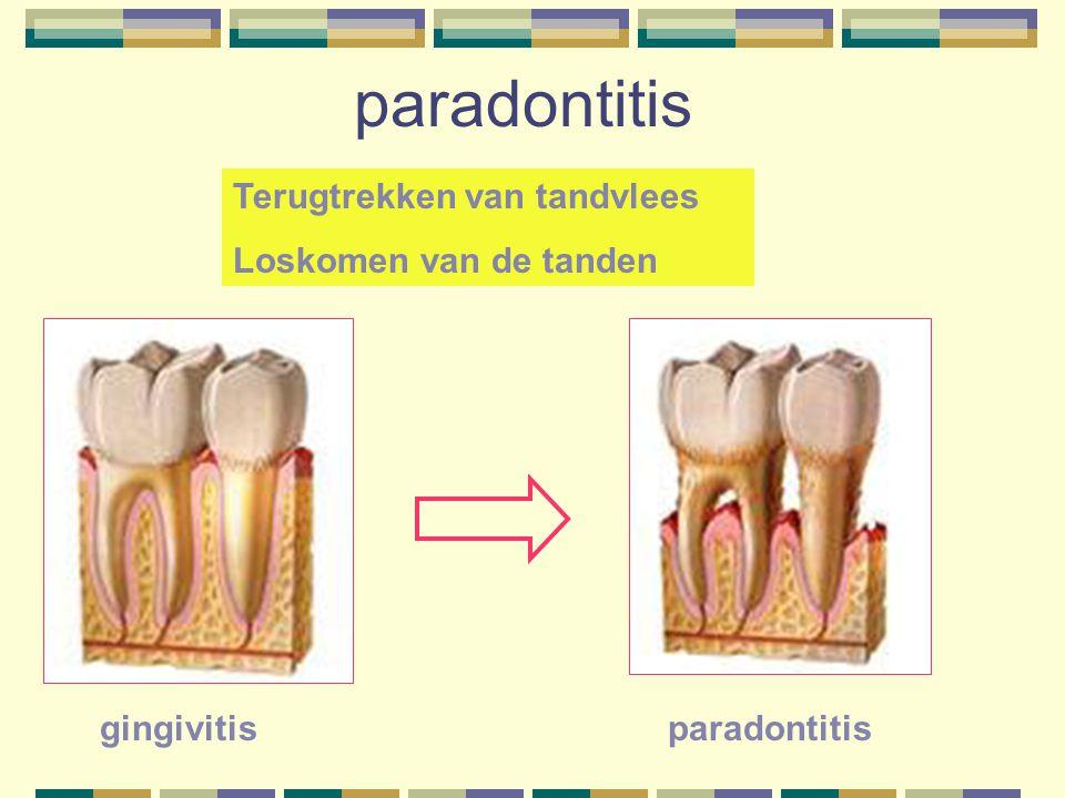 paradontitis Terugtrekken van tandvlees Loskomen van de tanden gingivitisparadontitis