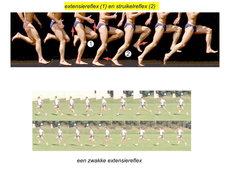 extensiereflex (1) en struikelreflex (2) een zwakke extensiereflex