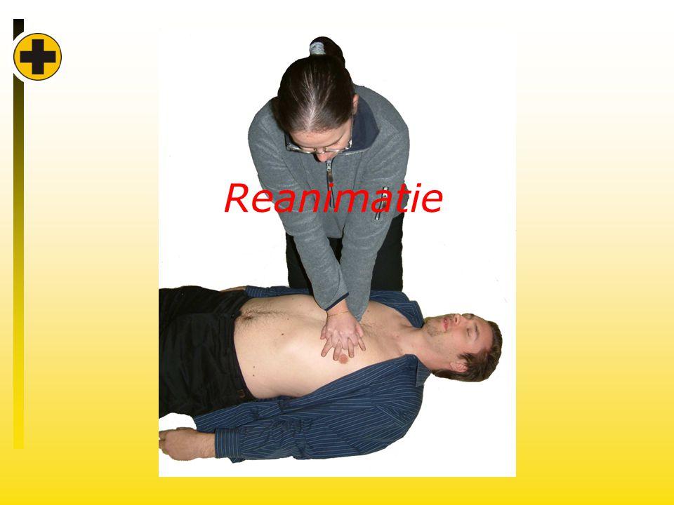 Reanimatie