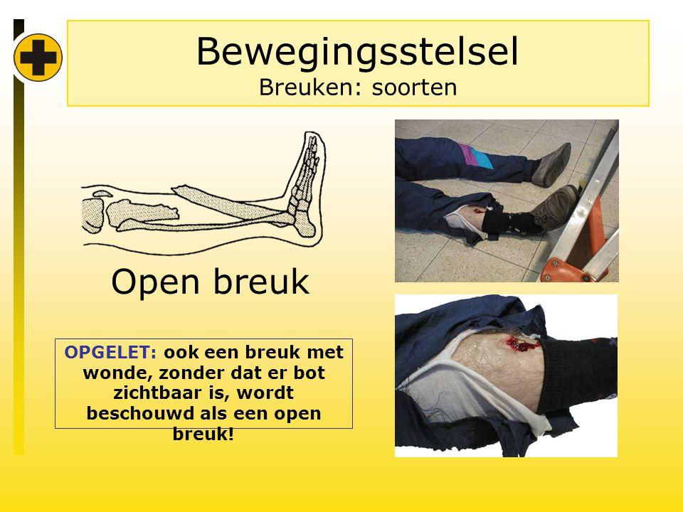 Bewegingsstelsel Breuken: soorten Open breuk OPGELET: ook een breuk met wonde, zonder dat er bot zichtbaar is, wordt beschouwd als een open breuk!