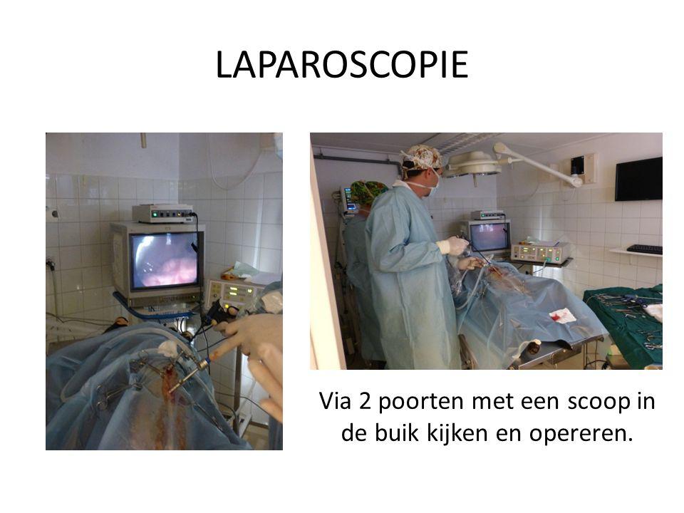 LAPAROSCOPIE Via 2 poorten met een scoop in de buik kijken en opereren.