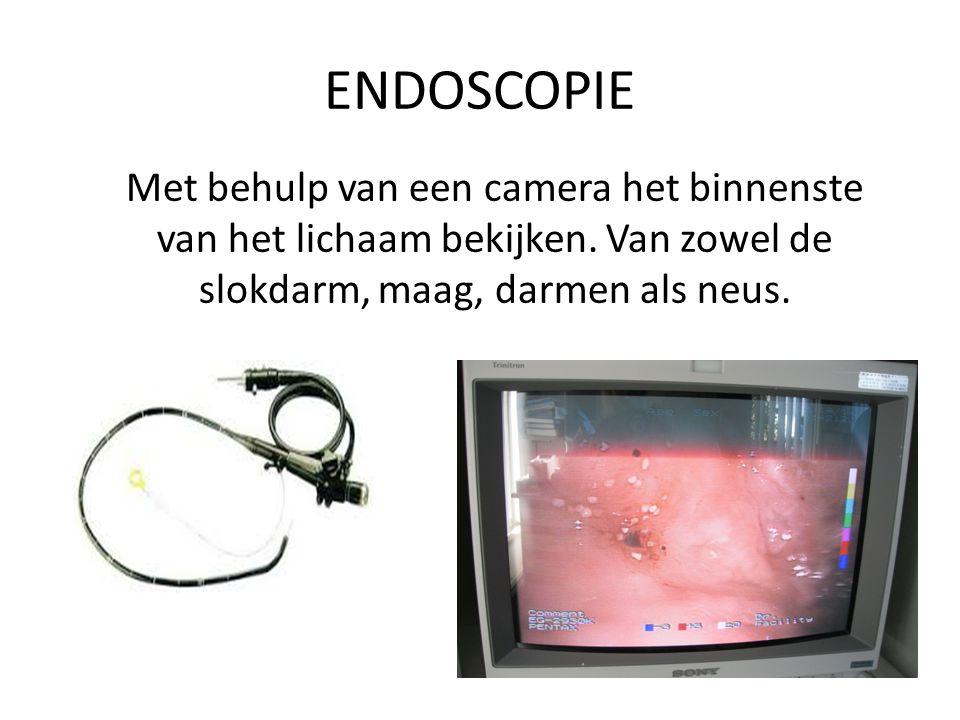 ENDOSCOPIE Met behulp van een camera het binnenste van het lichaam bekijken. Van zowel de slokdarm, maag, darmen als neus.