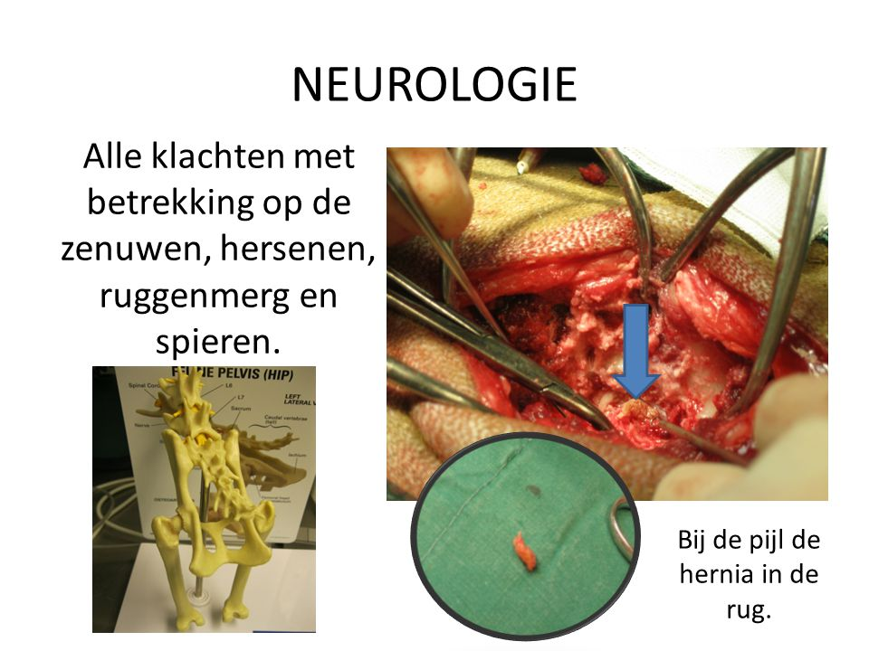 NEUROLOGIE Alle klachten met betrekking op de zenuwen, hersenen, ruggenmerg en spieren. Bij de pijl de hernia in de rug.