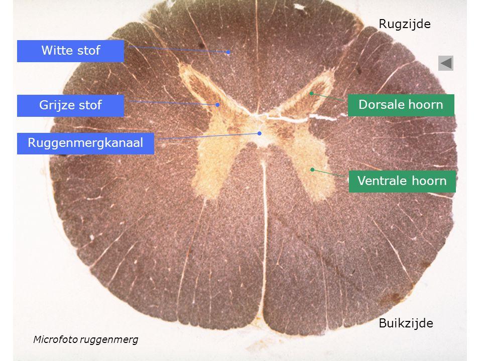 Microfoto ruggenmerg Witte stof Grijze stof Ruggenmergkanaal Dorsale hoorn Ventrale hoorn Rugzijde Buikzijde