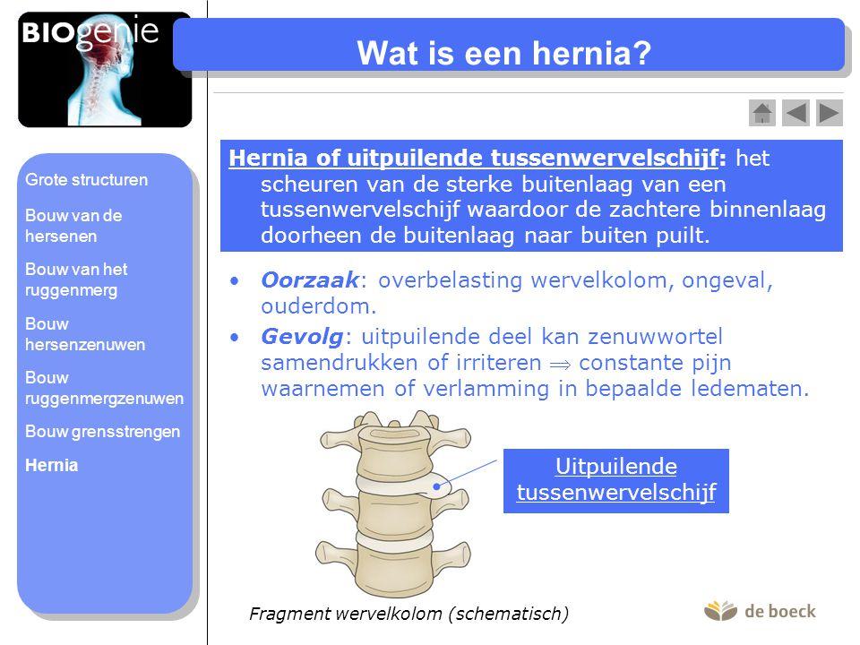 Wat is een hernia? Hernia of uitpuilende tussenwervelschijf: het scheuren van de sterke buitenlaag van een tussenwervelschijf waardoor de zachtere bin