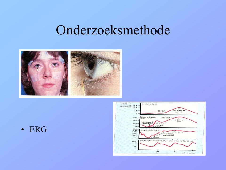 Onderzoeksmethode •ERG