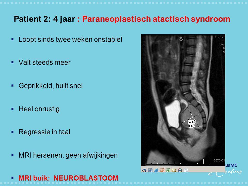Patient 2: 4 jaar : Paraneoplastisch atactisch syndroom  Loopt sinds twee weken onstabiel  Valt steeds meer  Geprikkeld, huilt snel  Heel onrustig