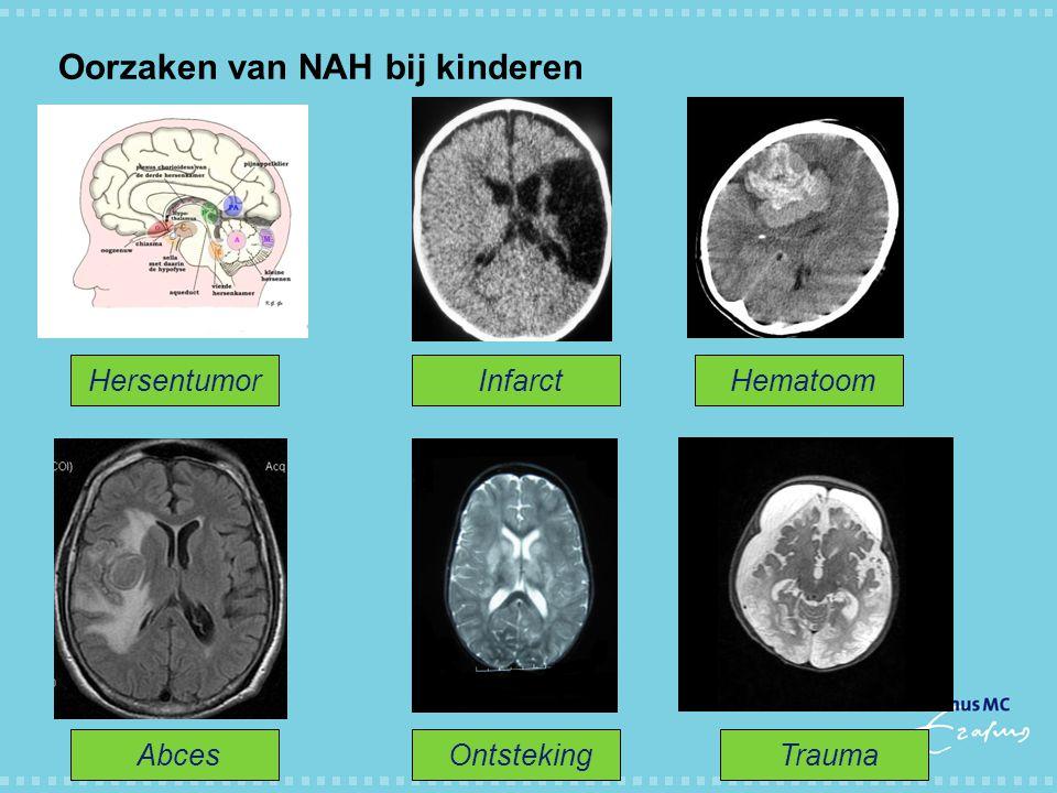 Oorzaken van NAH bij kinderen Hersentumor Infarct Hematoom Abces Ontsteking Trauma