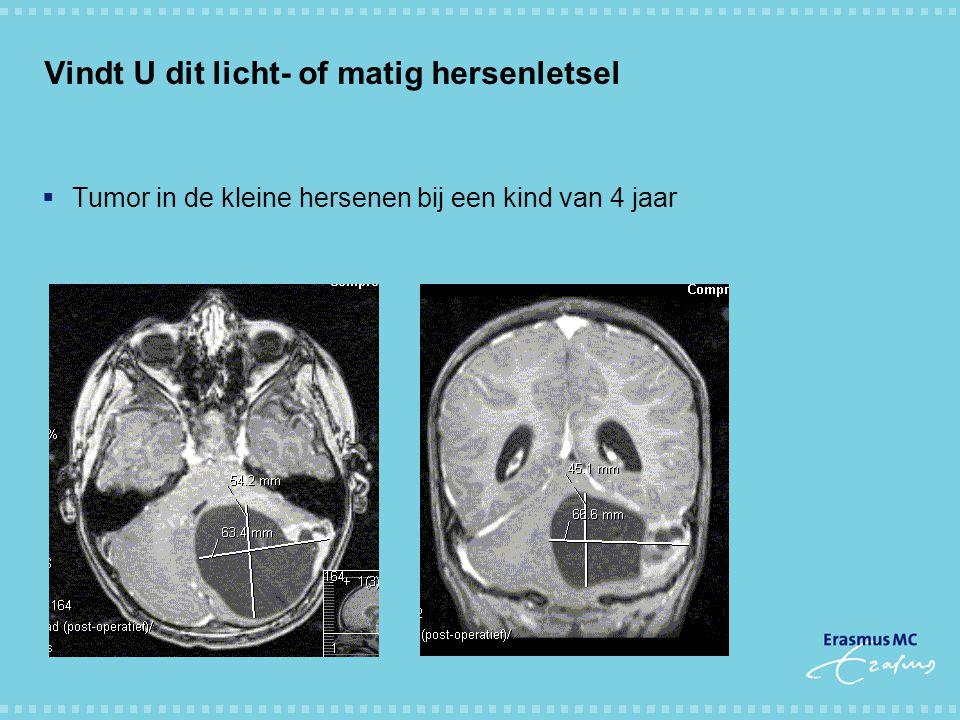 Vindt U dit licht- of matig hersenletsel  Tumor in de kleine hersenen bij een kind van 4 jaar