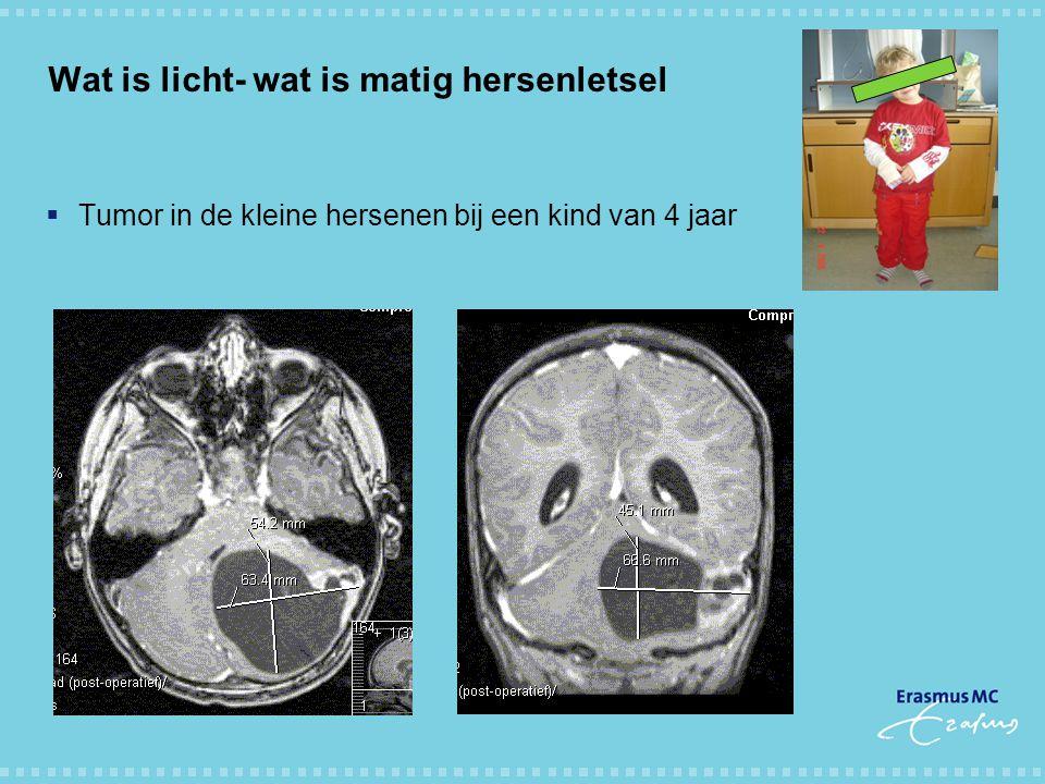 Wat is licht- wat is matig hersenletsel  Tumor in de kleine hersenen bij een kind van 4 jaar