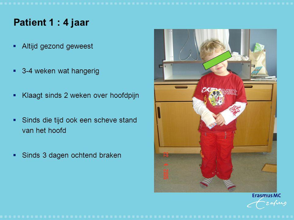 Incidentie NAH bij kinderen en jongeren.