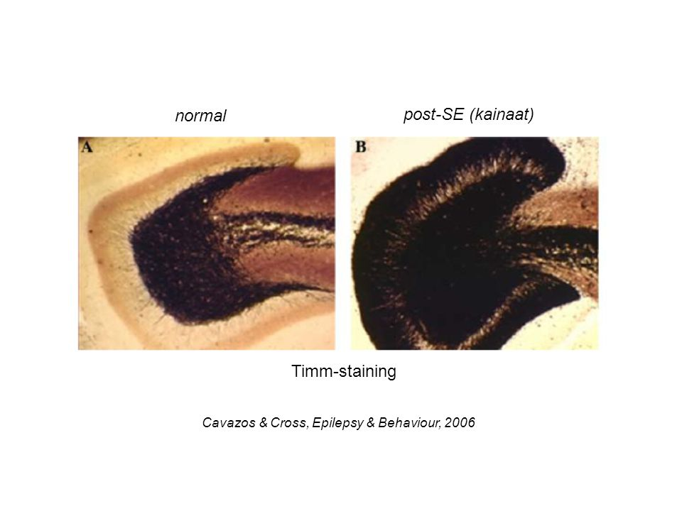 Cavazos & Cross, Epilepsy & Behaviour, 2006 normal post-SE (kainaat) Timm-staining