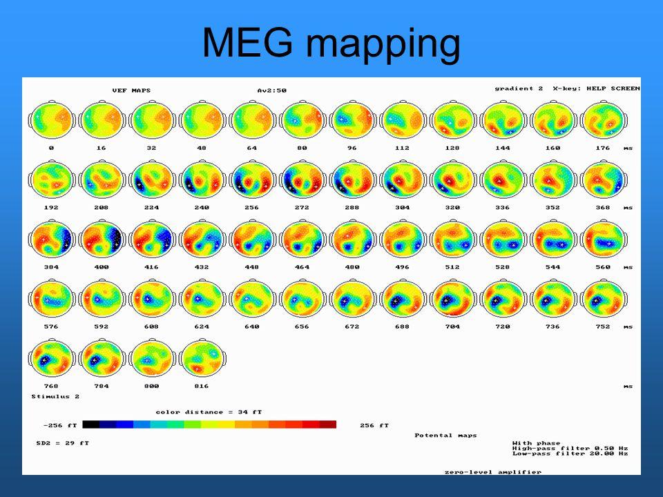 MEG mapping