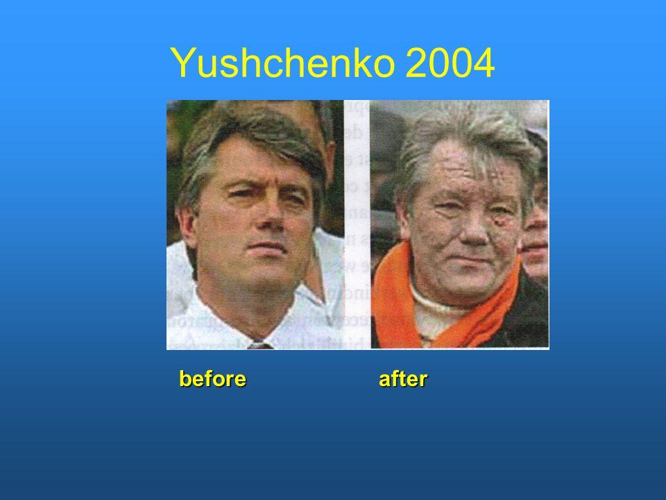 beforeafter Yushchenko 2004