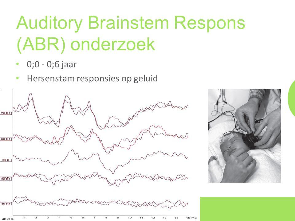 Auditory Brainstem Respons (ABR) onderzoek • 0;0 - 0;6 jaar • Hersenstam responsies op geluid