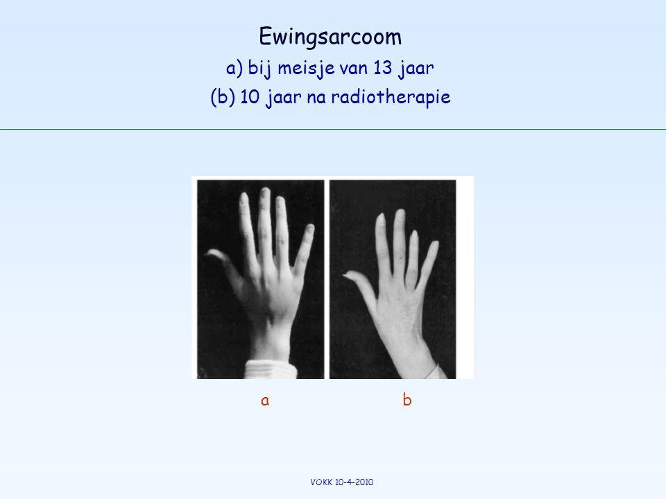 Ewingsarcoom a) bij meisje van 13 jaar (b) 10 jaar na radiotherapie ab VOKK 10-4-2010
