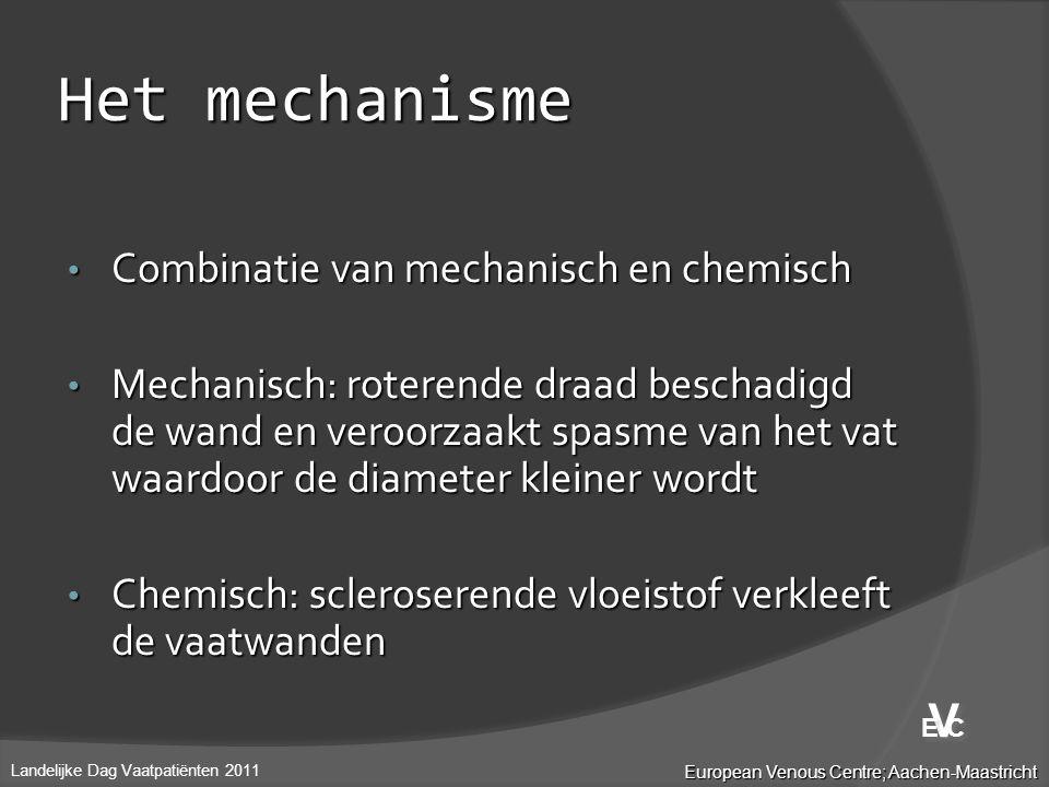 Het mechanisme • Combinatie van mechanisch en chemisch • Mechanisch: roterende draad beschadigd de wand en veroorzaakt spasme van het vat waardoor de