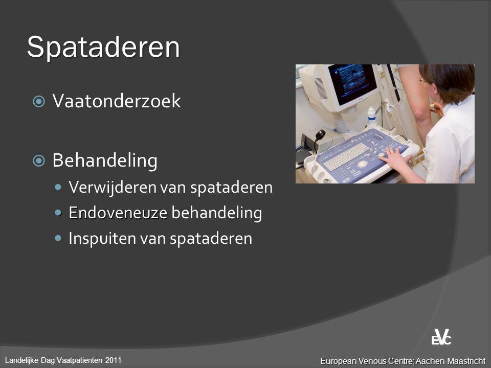 Spataderen  Vaatonderzoek  Behandeling  Verwijderen van spataderen  Endoveneuze  Endoveneuze behandeling  Inspuiten van spataderen European Veno