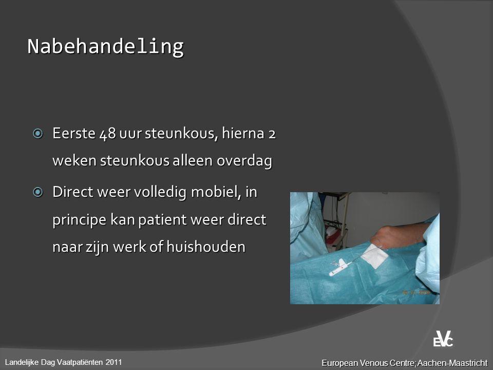 Nabehandeling  Eerste 48 uur steunkous, hierna 2 weken steunkous alleen overdag  Direct weer volledig mobiel, in principe kan patient weer direct na