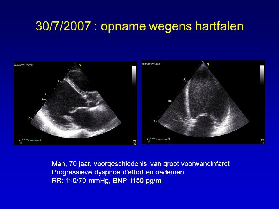 30/7/2007 : opname wegens hartfalen Man, 70 jaar, voorgeschiedenis van groot voorwandinfarct Progressieve dyspnoe d'effort en oedemen RR: 110/70 mmHg, BNP 1150 pg/ml