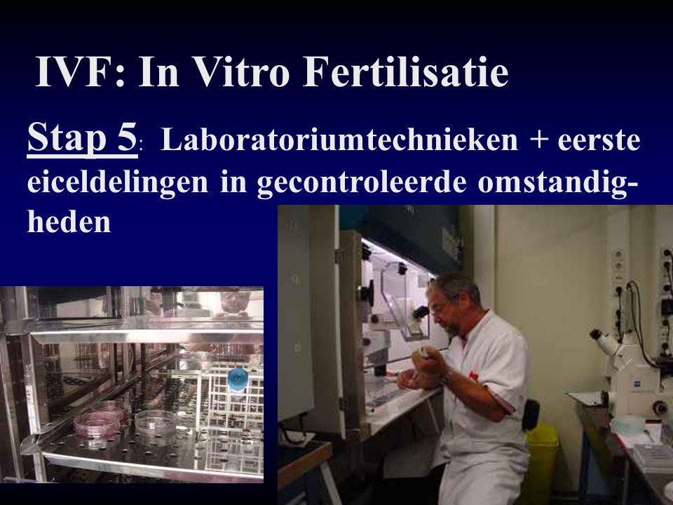 IVF: In Vitro Fertilisatie Stap 5 : Laboratoriumtechnieken + eerste eiceldelingen in gecontroleerde omstandig- heden