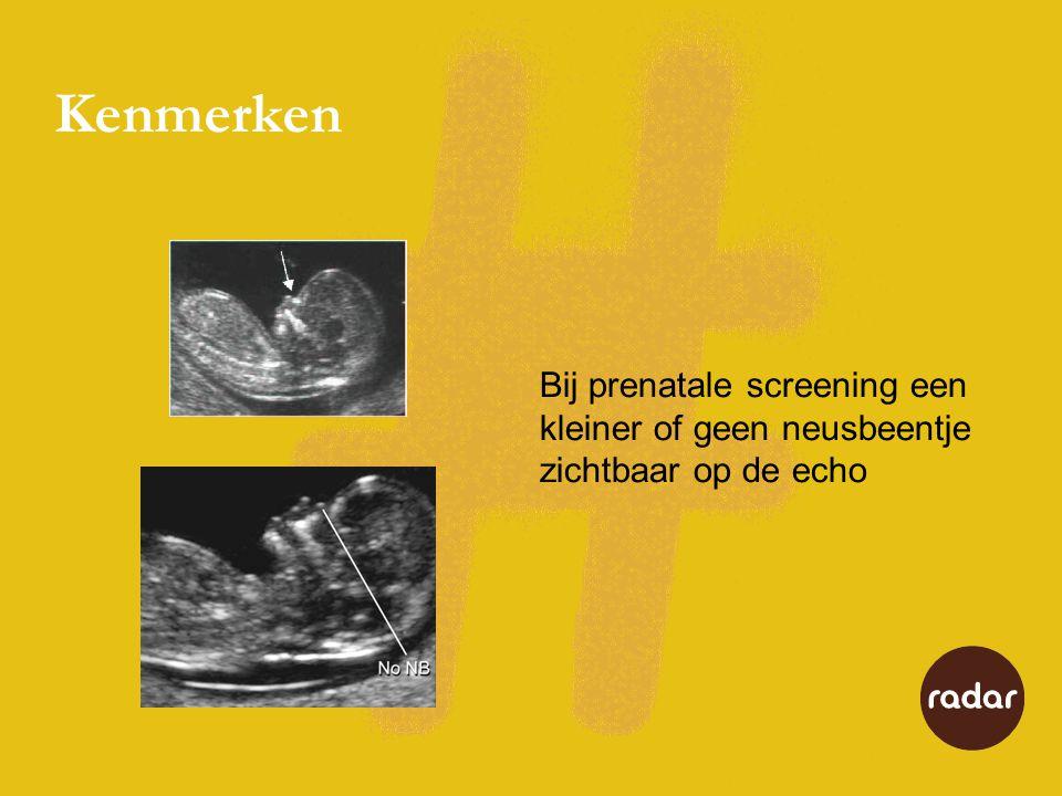 Kenmerken Bij prenatale screening een kleiner of geen neusbeentje zichtbaar op de echo