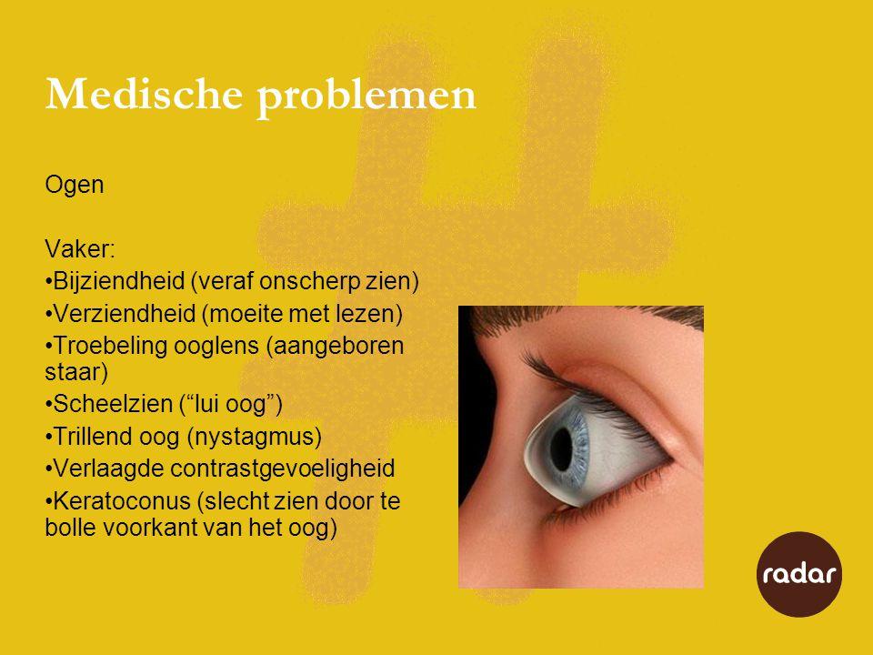 Medische problemen Ogen Vaker: •Bijziendheid (veraf onscherp zien) •Verziendheid (moeite met lezen) •Troebeling ooglens (aangeboren staar) •Scheelzien