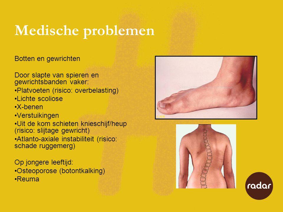 Medische problemen Botten en gewrichten Door slapte van spieren en gewrichtsbanden vaker: •Platvoeten (risico: overbelasting) •Lichte scoliose •X-bene