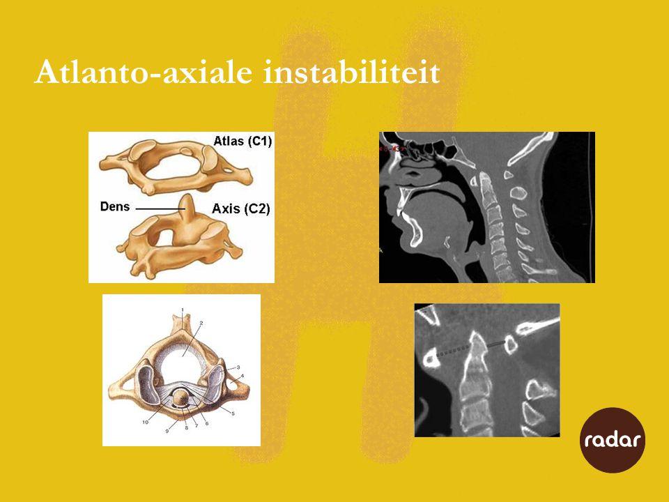 Atlanto-axiale instabiliteit