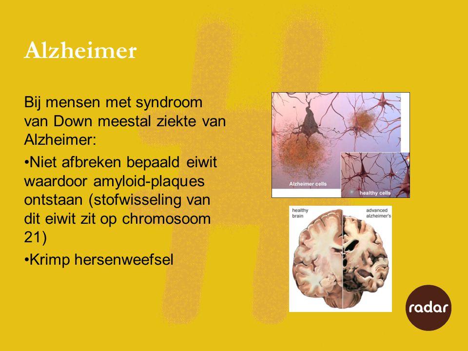 Alzheimer Bij mensen met syndroom van Down meestal ziekte van Alzheimer: •Niet afbreken bepaald eiwit waardoor amyloid-plaques ontstaan (stofwisseling van dit eiwit zit op chromosoom 21) •Krimp hersenweefsel
