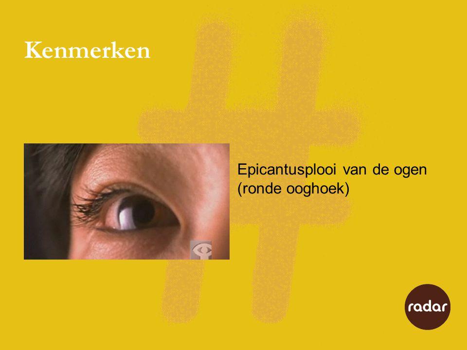 Kenmerken Epicantusplooi van de ogen (ronde ooghoek)